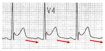 Spodick sign V4 downsloping TP segment
