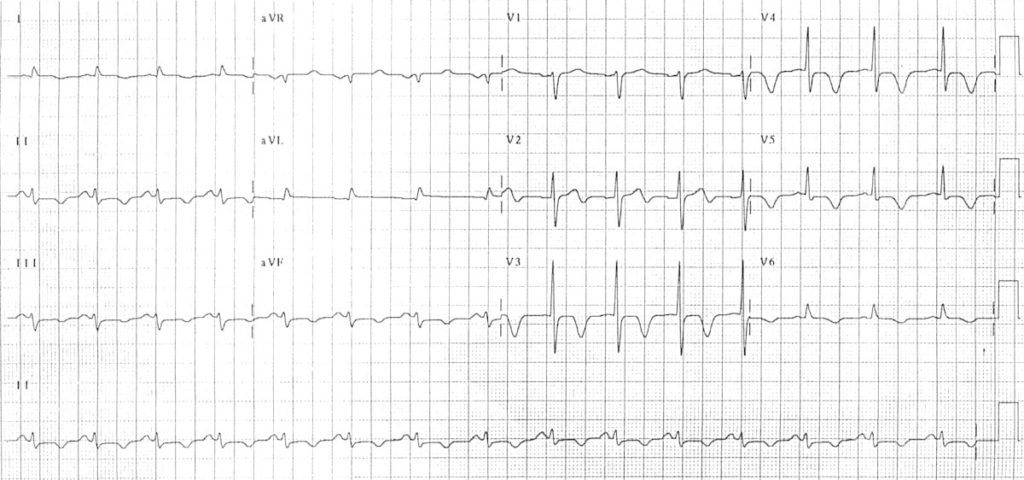 Subarachnoid Haemorrhage ECG