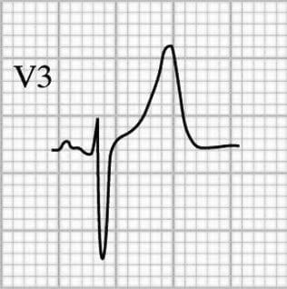 T-wave-morphology-BER