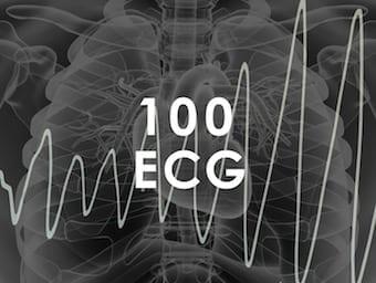 TOP-100-ECG-QUIZ-340