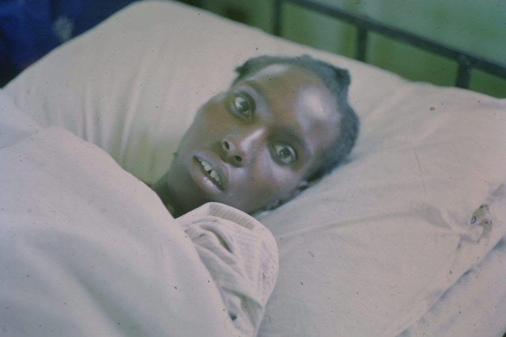 Typhoid facies