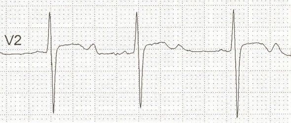 U waves associated with hypokalaemia potassium 1.9