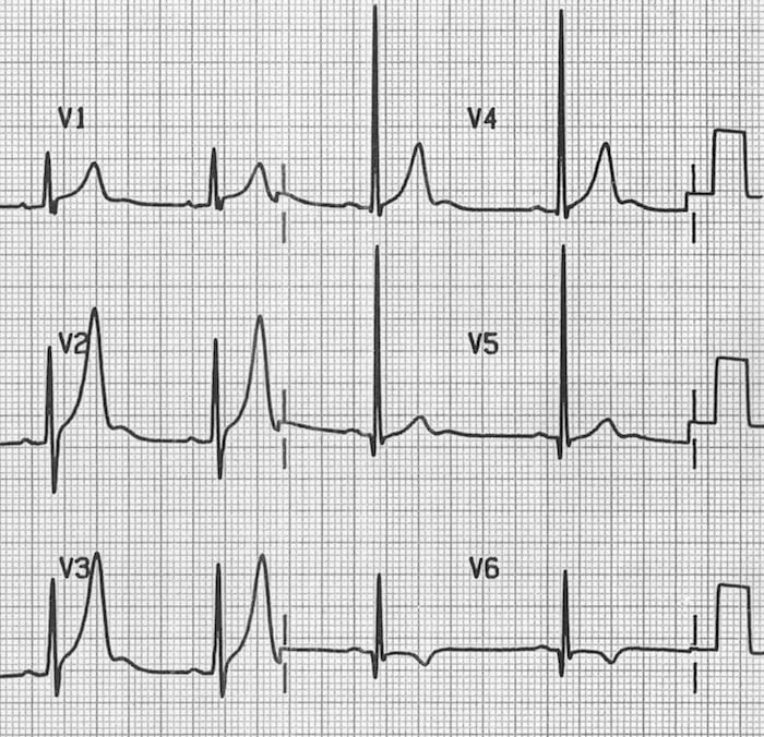 U waves associated with ventricular hypertrophy