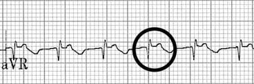 Upright retrograde P waves in aVR