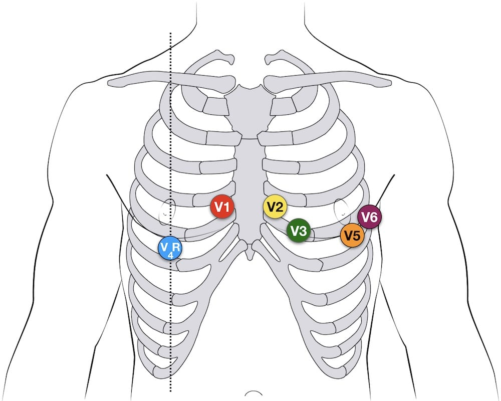 V4R ECG lead placement