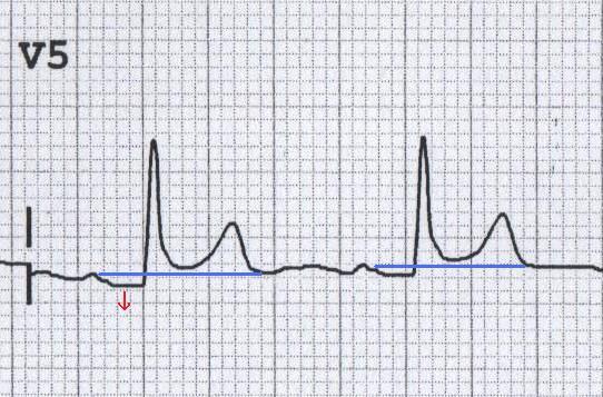 ECG pericarditis PR segment depression