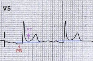 V5-pericarditis
