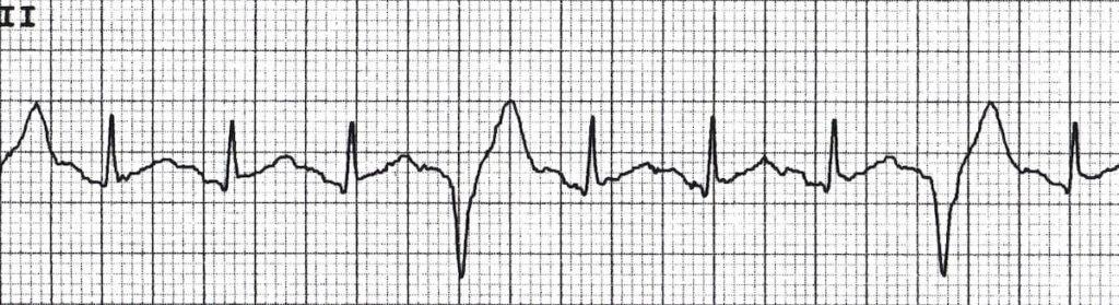 Ventricular Quadrigeminy 3