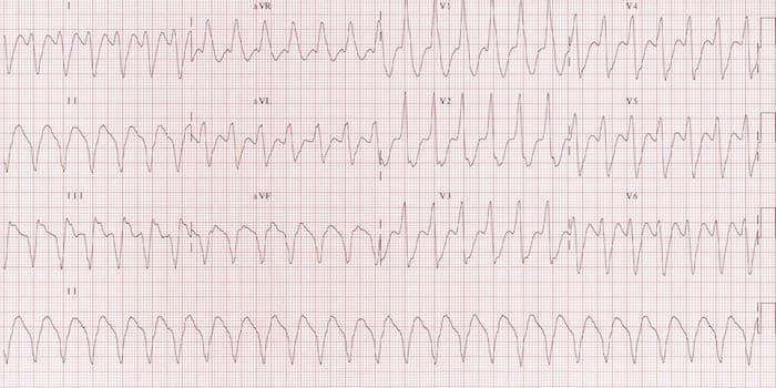 Ventricular Tachycardia R wave 2