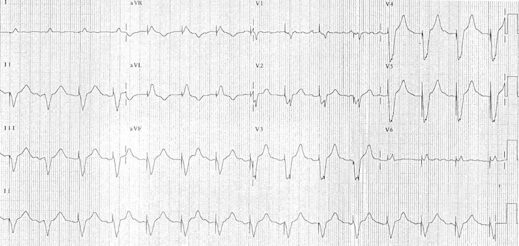 Ventricular-pacing 2