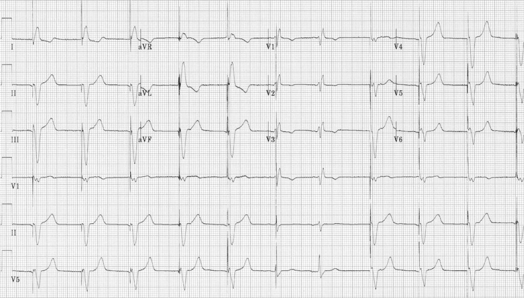 Ventricular pacing with capture beats 2