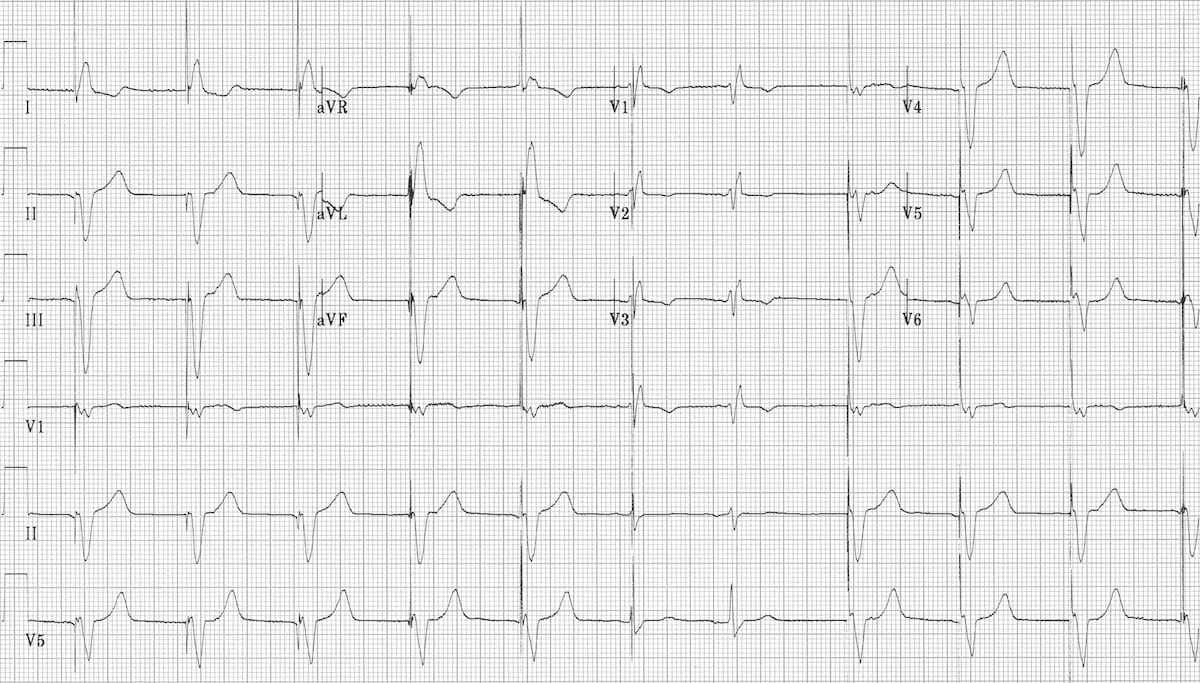 Pacemaker Rhythms Normal Patterns Litfl Ecg Library