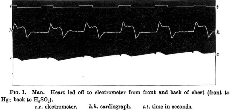 Waller 1887 first ECG in human