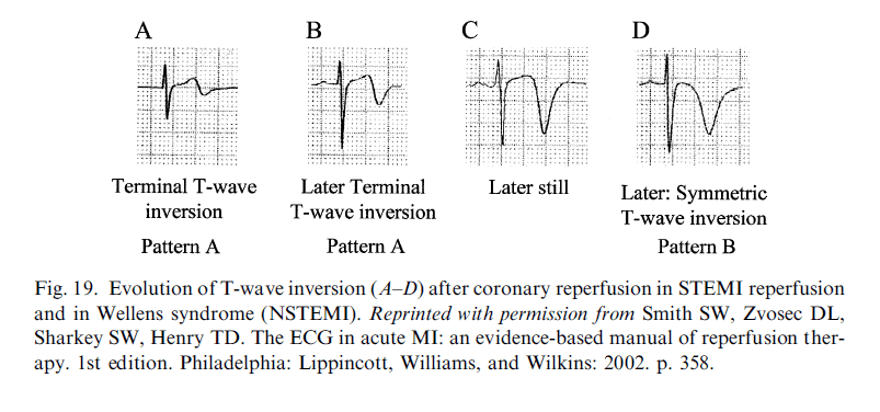 Wellens Dr Smith ECG blog