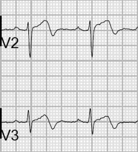 Wellens Pattern A Type 1 T wave 2