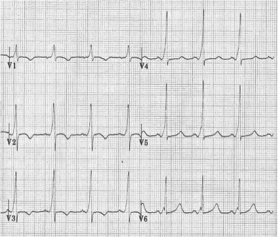 Wolff-Parkinson-White (WPW) Type A R wave