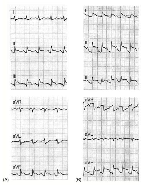 ECG Atrial Ischaemia