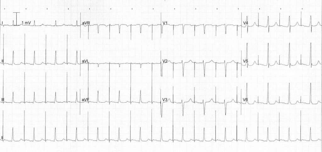 atrial-pacing-1st-degree-AV-block