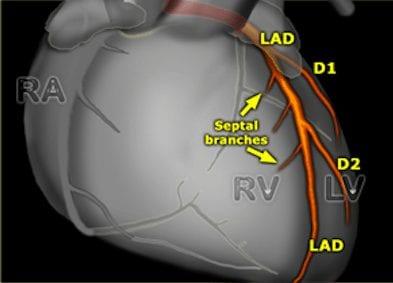coronary-anatomy2