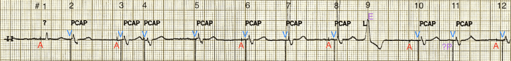 ecg99-rhythm-strip2