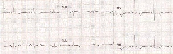 Lateral; leads T wave inversion acute ischaemia