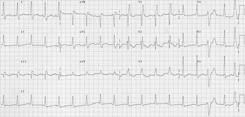 ECG pulmonary embolus