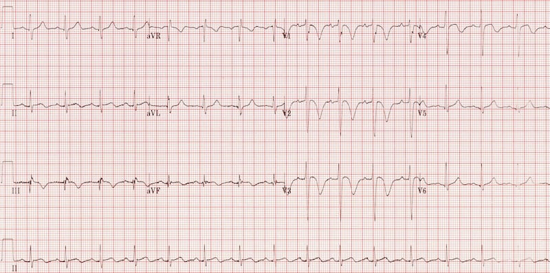 massive pulmonary embolism ECG T wave inversion