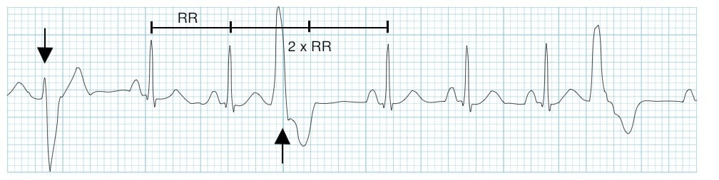 ECG Multifocal Premature Ventricular Complex (PVC)