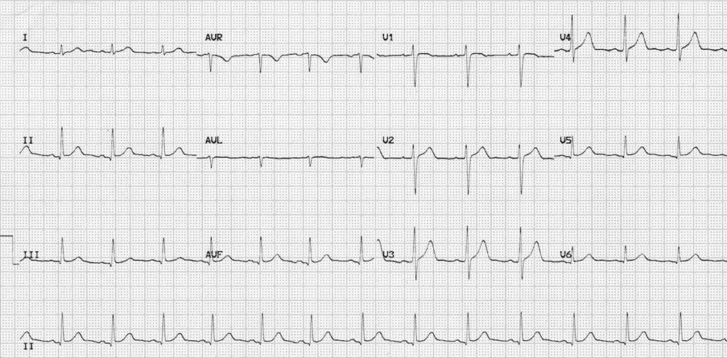ECG Normal sinus rhythm