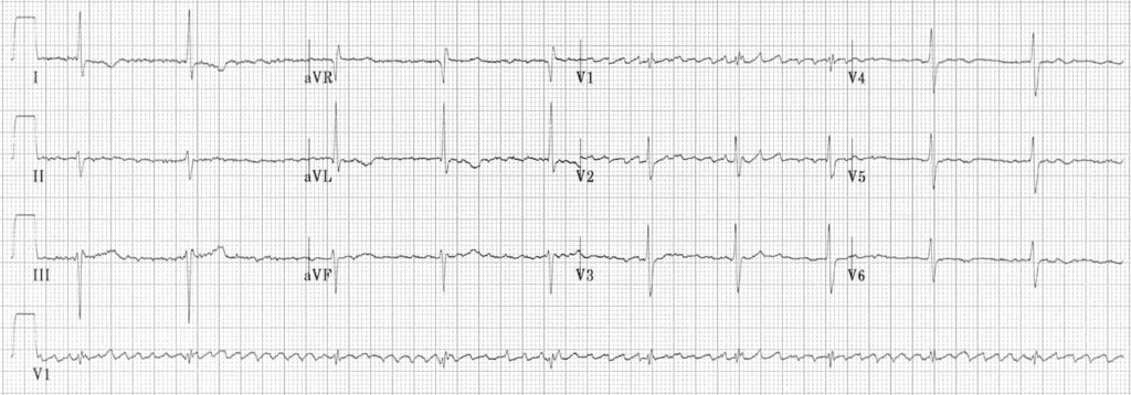 regularised atrial fibrillation ECG