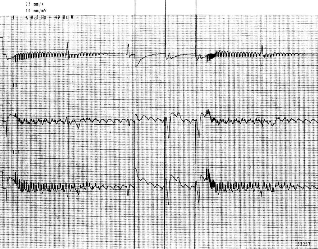 runaway-pacemaker 2
