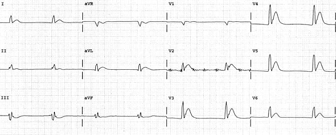 Dr. Smith's ECG Blog: How are these cases related?