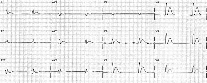 ECG Short QT Hypercalcaemiaa