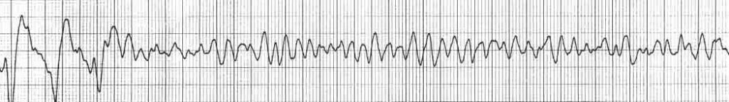 ventricular fibrillation rhythm strip VF shock advised