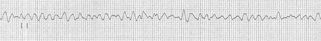 ventricular fibrillation rhythm strip VF