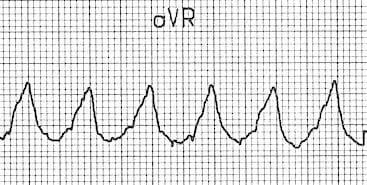 vereckei-aVR-VT Dominant initial R wave in aVR