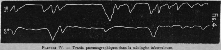 Biot respiration original tracing 1876