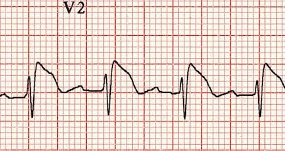 Brugada syndrome in V2