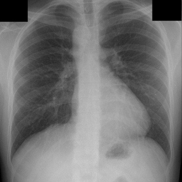 CXR Right sided aortic arch