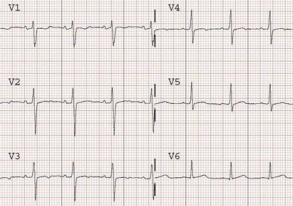 Dynamic T wave flattening due to anterior ischaemia