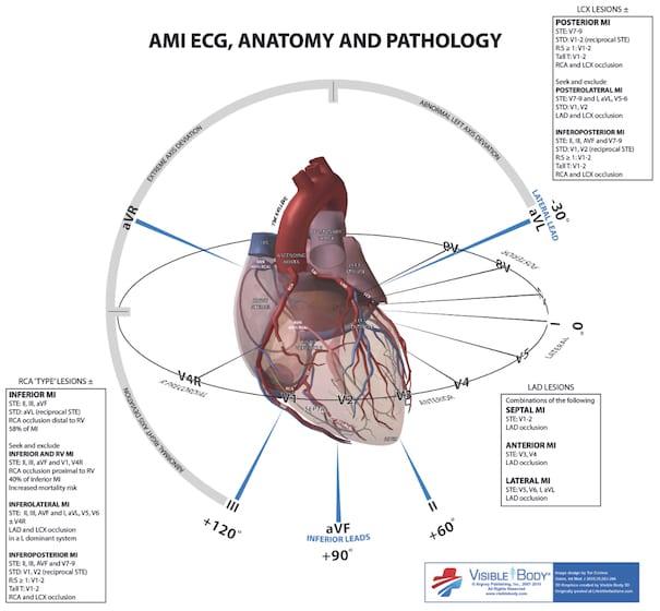 ECG Anatomy MI localisation