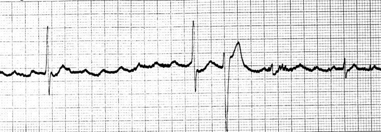ECG Digoxin toxicity PAT