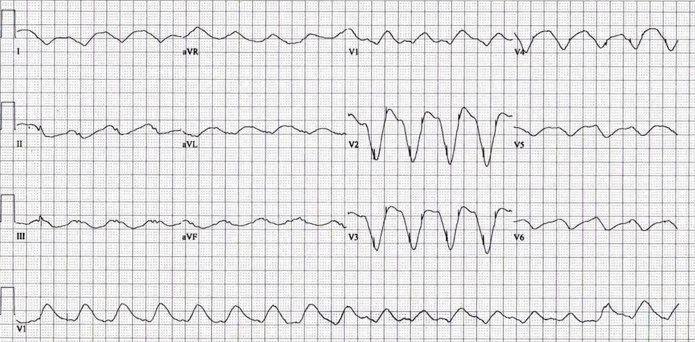 ECG Exigency 016 Pacemaker Panic 001
