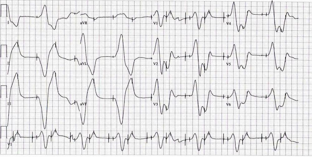 ECG Exigency 016 Pacemaker Panic 002