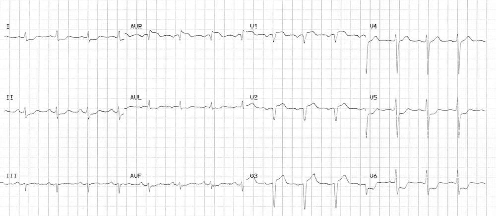 ECG LMCA or proximal LAD