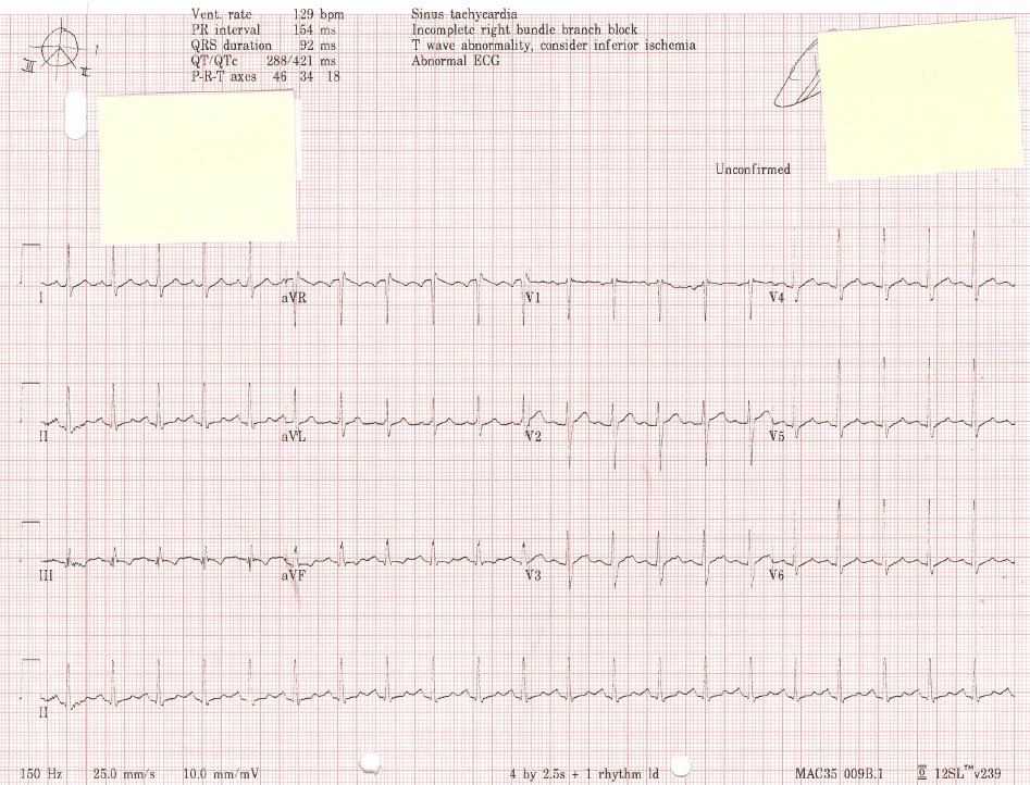 ECG Pulmonary Embolus