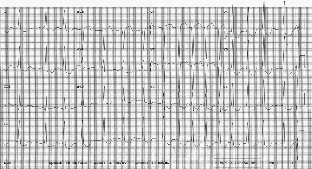 ECG R on T post Rx