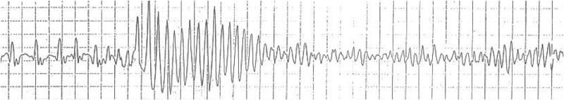 ECG Rhythm strip Exigency 003 3
