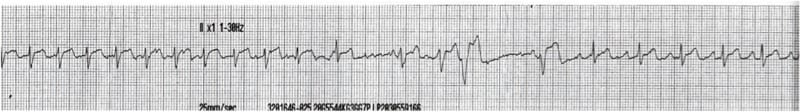 ECG Rhythm strip Exigency 003 5