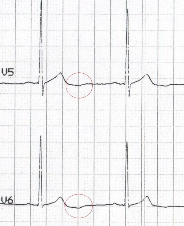 ECG complex U wave inversion V5 V6